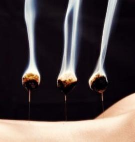 Moxibustion